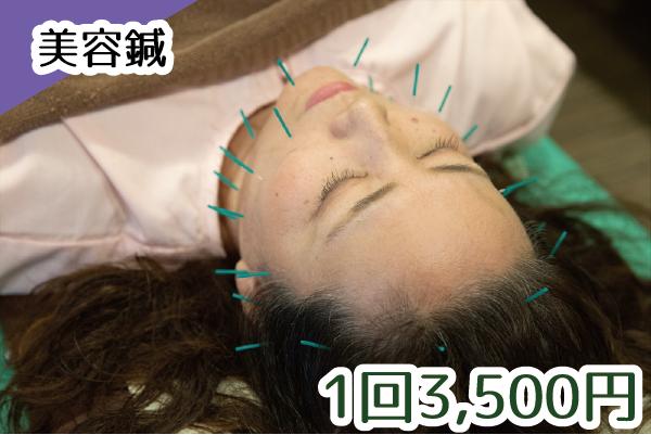 美容鍼 1回3,500円