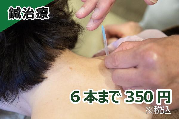 鍼治療 6本まで320円